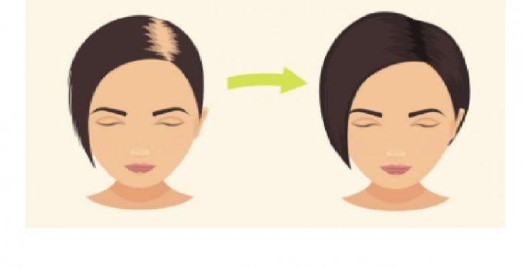 Un must pour ceux et celles qui ont les cheveux minces, plats, clairsemés ou qui manquent de tenue