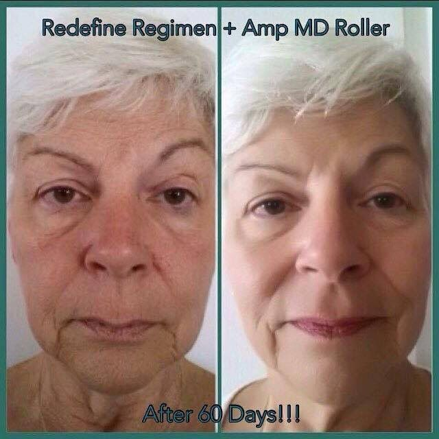 Best Befores And Afters Rodan Fields Images On Pinterest - 20 before and after shots that show the magic of visual effects