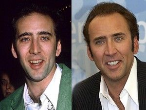 Top 10 Celebrity Cosmetic Dental Surgery Before and After Photos of Nicholas Cage