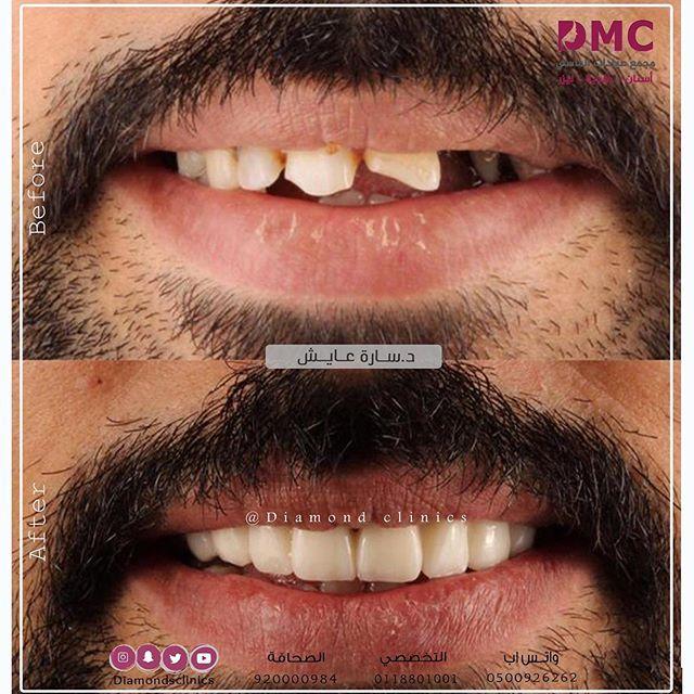 إبتسامة متقنة بأجود انواع تركيبات الاسنان الامبراس مع العدسات لتظهر اروع إبتسامة لدى د ساره عايش اتصلوا الان مرك