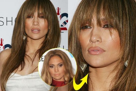 Jennifer Lopez Botox Plastic Surgery Face Lift Photos Before And After