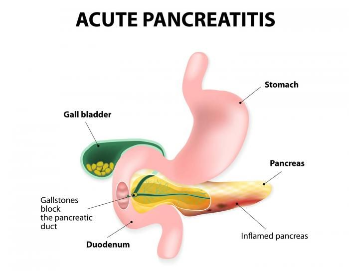 pancreatitis case study paper Submit your paper enter your  of pancreatology (iap), the european  pancreatic club (epc) and several national societies and study groups around  the world.