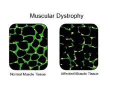 Muscular dystrophy - Wikipedia, the free encyclopedia