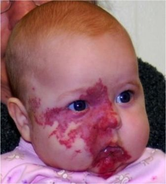 Port Wine Stain Birthmark Cause, Treatment & Removal