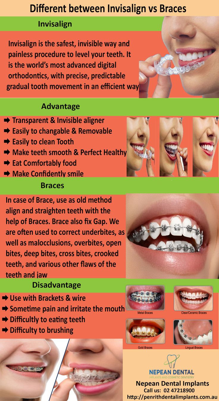 Invisalign Braces for Straight Teeth Invisalign vs