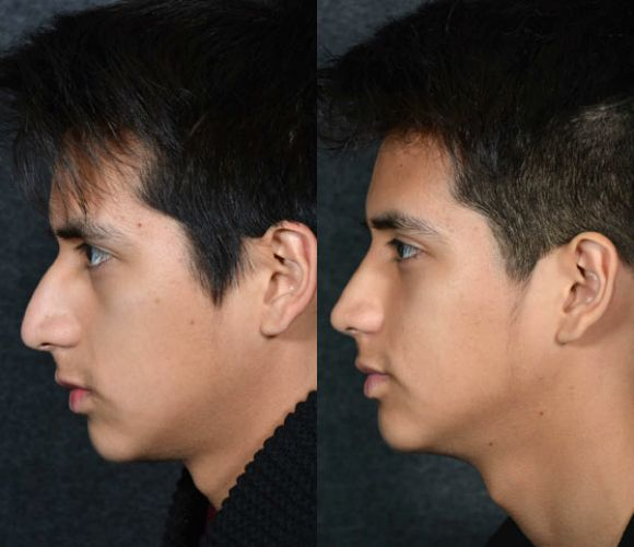 Some googlefu Asian men plastic surgery saved this