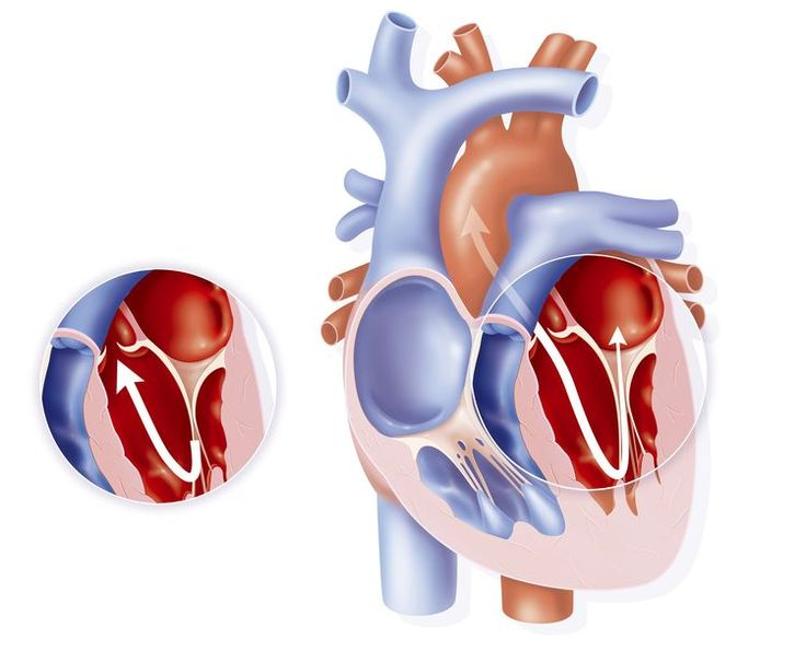 Exercise recommendations with mitral valve prolapse - MVP