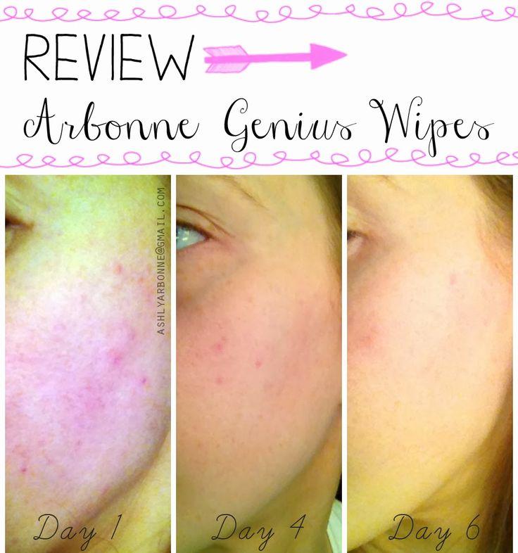 REVIEW Arbonne, Acne scaring, Arbonne skin care