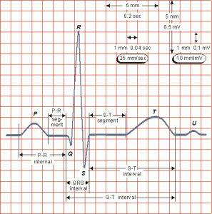 RUTINA DE INTERPRETACIÓN DE UN ECG | Medicina Interna al día