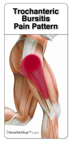 Trochanteric bursitis is often caused by the iliotibial band (IT band) tightening and rubbing against the bursa. Pain may radiate from the hip down the outside of the thigh. #trochanteric