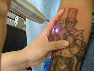 Tips for Taking Care of Your Skin After Tattoo Removal #TattooRemoval #tattooremovalproducts