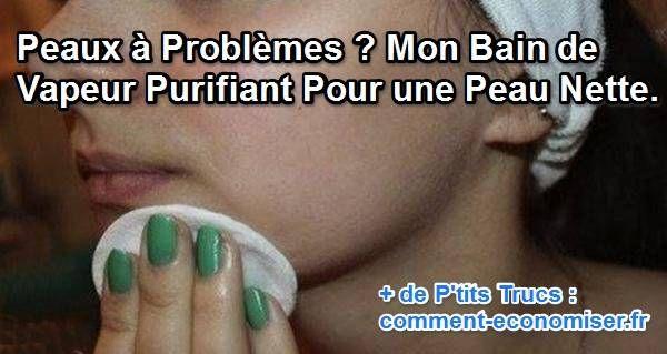 Pas besoin d'aller chez le dermatologue pour un traitement pour la peau. Mieux vaut faire un bon bain de vapeur purifiant pour éliminer les impuretés naturellement, sans douleur et sans se ruiner !  Découvrez l'astuce ici : http://www.comment-economiser.fr/peaux-problemes-bain-vapeur-purifiant.html?utm_content=bufferff4db&utm_medium=social&utm_source=pinterest.com&utm_campaign=buffer