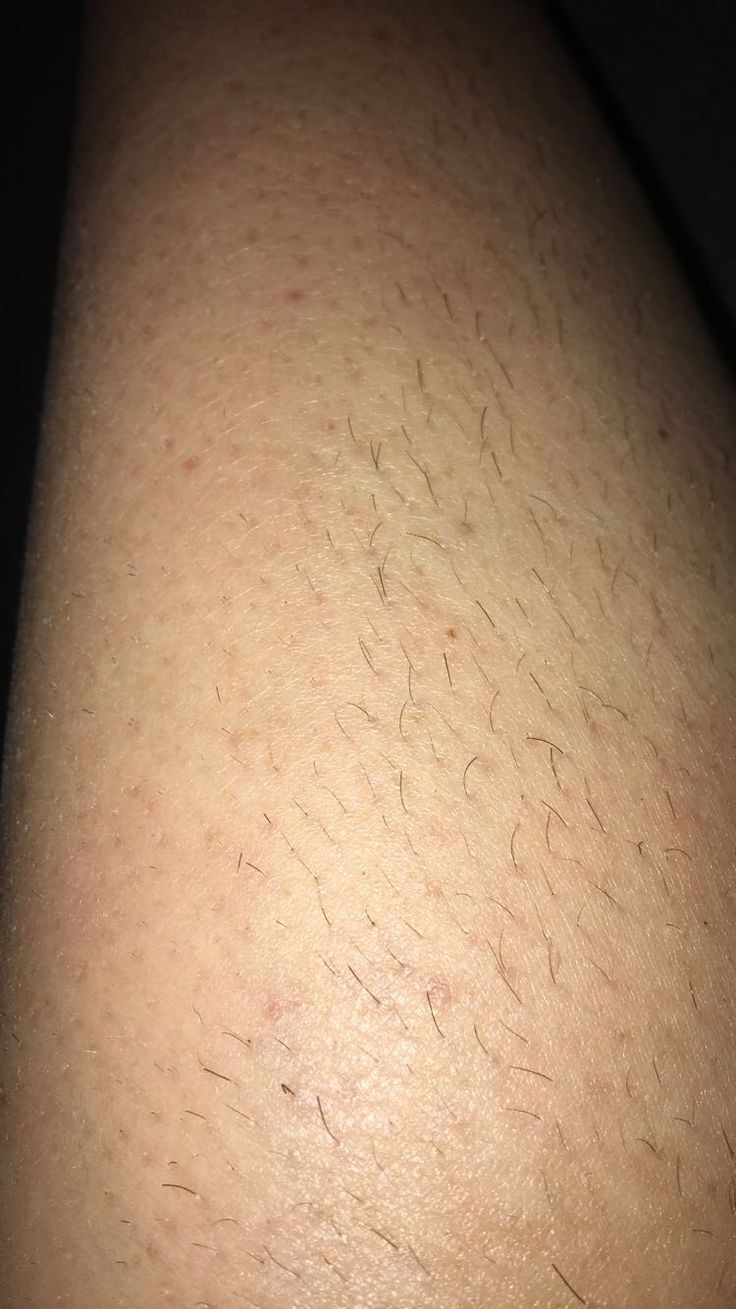 IPL (UPL) test patch to the inside of the leg compared to shaving