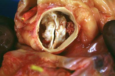 Bicuspid Aortic Valve, Aortic Bicuspid Symptoms Valve