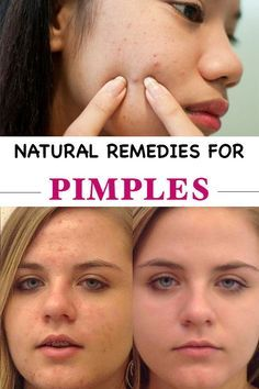 Home and Natural Remedies for Pimples
