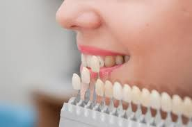 Porcelain veneers helps you in adding more color and shape for your teeth. It is our preferred option of treating your tooth.