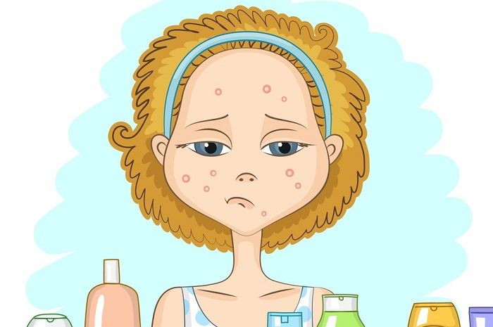 Check inside 7 simple and natural methods for how to get rid of a pimple overnight. Some of these methods may even work in an hour, if done the right way!