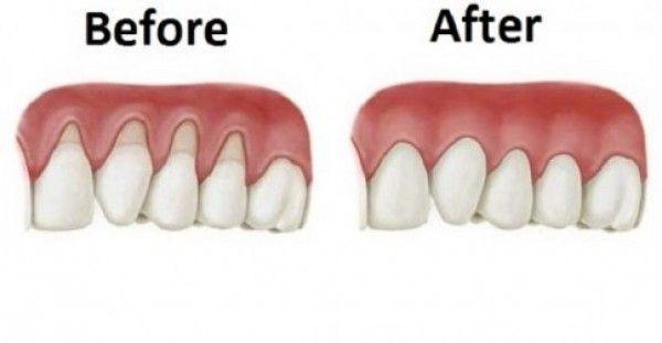 Υγεία - Καμιά φορά, ο ιστός γύρω από τα ούλα φθείρεται και φαίνεται σαν να ξεθωριάζουν τα ούλα σας. Εκτίθεται μεγαλύτερη επιφάνεια των δοντιών, το τέλειο μέρος για