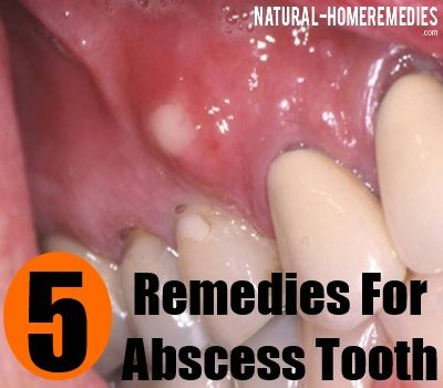 Best Abscess Tooth Home Remedy