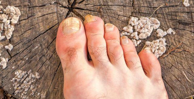 V botách je vlhko a snadno do nich pronikají houbovité mikroorganismy