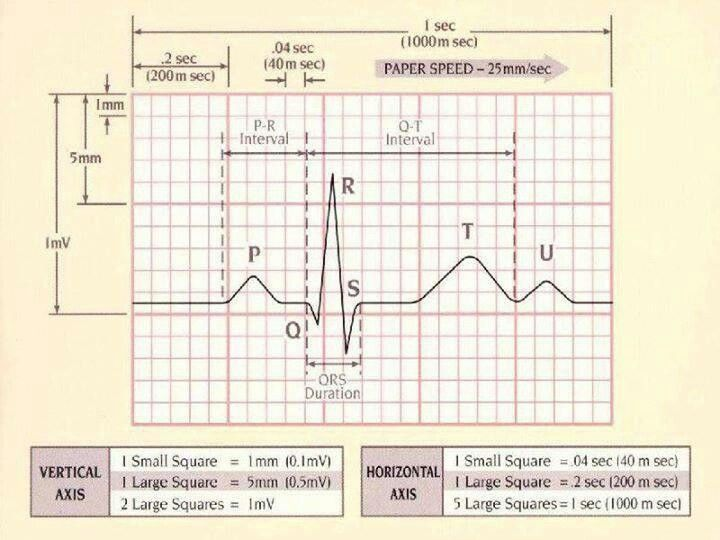 ekg measurement and interpretation at rest Resting 12-lead ecg electrode placement and  print out a computer assisted ecg interpretation  these leads are called bipolar limb leads because they measure the.