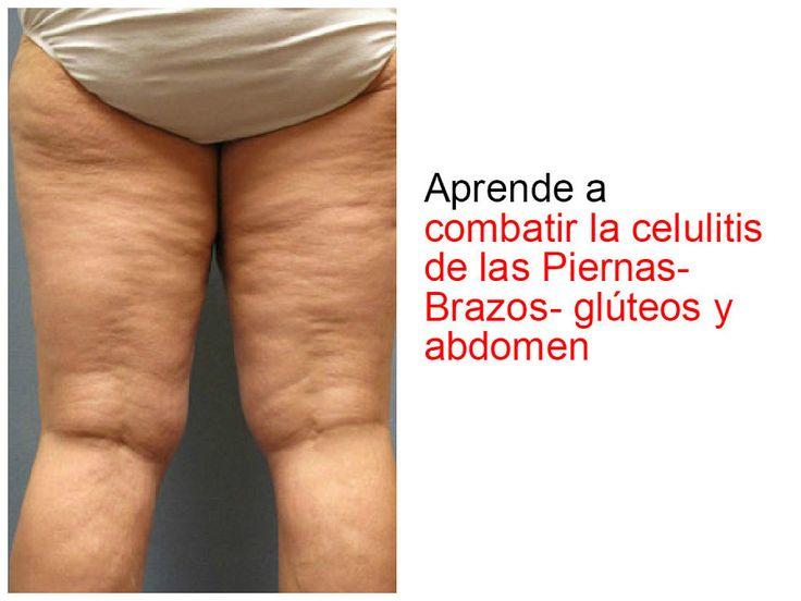 Consejos para combatir la celulitis en todo el cuerpo
