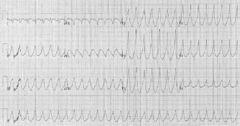 Wikipedia - Tachycardia