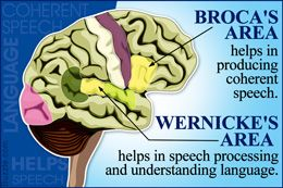 Difference between Broca's area and Wernicke's area in the brain