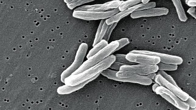 Туберкулез  ●Общие сведения  Путь передачи туберкулеза воздушно-капельный, особенно велика вероятность заражения при частом контакте с больным. К туберкулезу восприимчивы люди с ослабленными защитными силами организма (например, дети раннего возраста, пожилые люди, больные СПИД или ВИЧ-инфицированные).  ●Причины развития туберкулеза  Инфицирование бактерией Mycobacterium tuberculosis.  ●Симптомы туберкулеза  Сильный кашель продолжительностью более двух недель, боль в грудной клетке, кашель с…