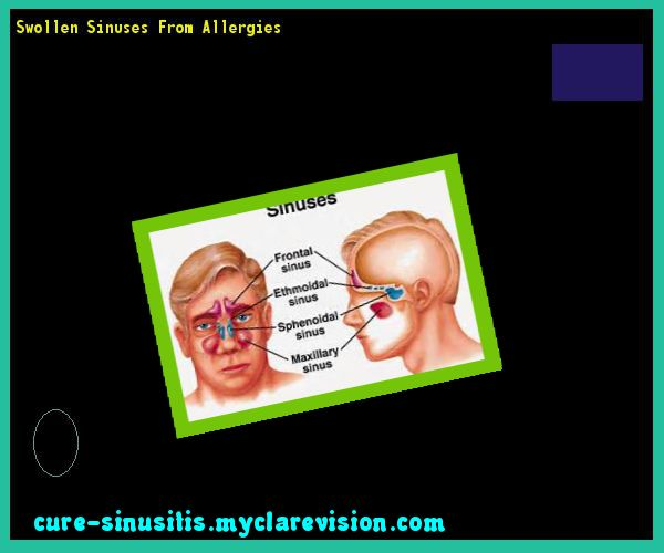 Swollen Sinuses From Allergies 090352 - Cure Sinusitis