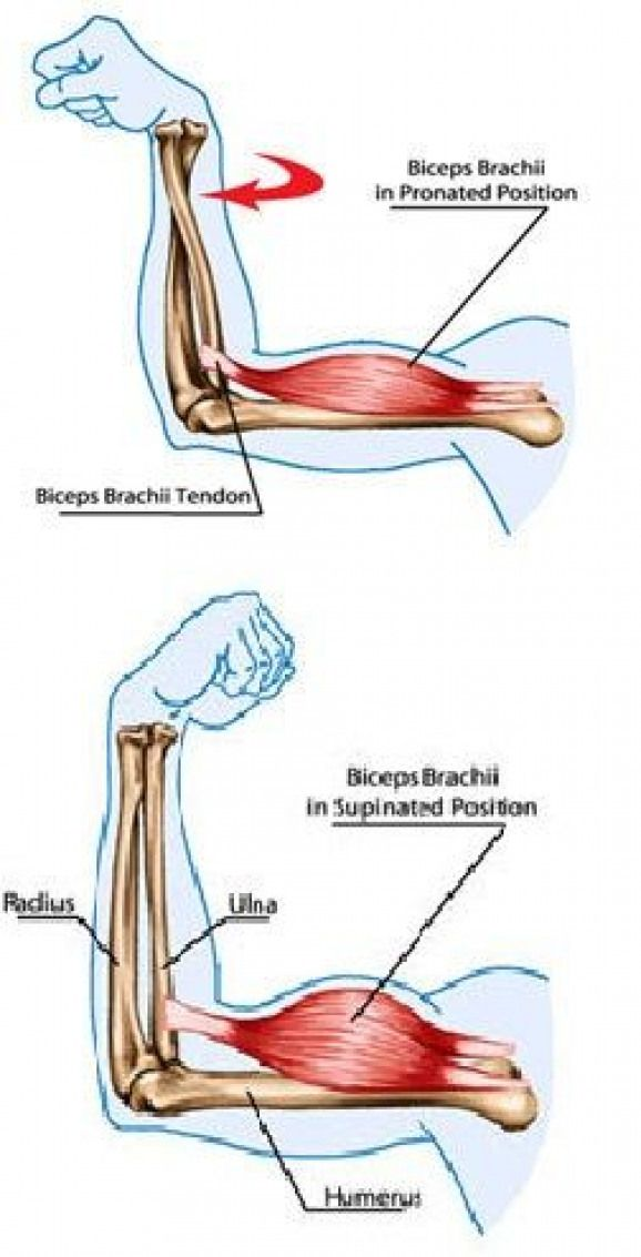 Tennis Elbow Is Caused Due To The Overuse Of Muscles In Your Arm