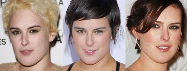 Rumer Willis jaw has been augmented and narrowed by chin surgery giving a softer more feminine look. Thousands of chin implant surgeries are performed every year. A chin implant adjusts the contours and increases the dimensions of the chin, which will correct an underdeveloped or receding chin. Beautiful aesthetic results can be achieved with chin implants.