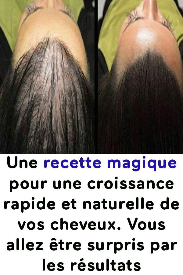 Une recette magique pour une croissance rapide et naturelle de vos cheveux. Vous allez être surpris par les résultats !