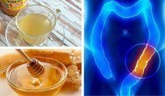 In diesem Hausmittel zur Darmreinigung werden die vorzüglichen Eigenschaften von Honig und Apfelessig kombiniert, die vielseitig verwendet werden können.