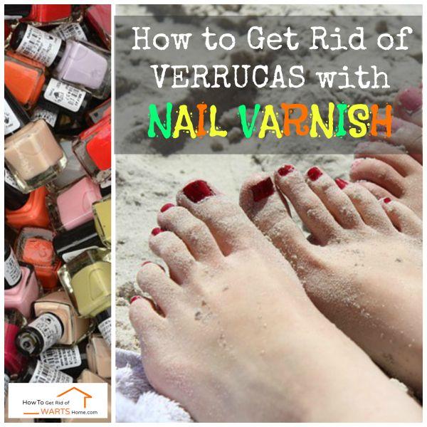 Wart removal home remedy nail polish, Papilloma right eye icd 10