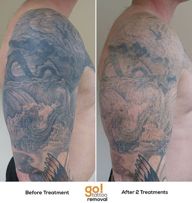 927 best tattoo removal in progress images on pinterest for New tattoo removal