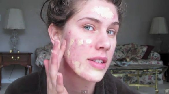 Girl With Severe Cystic Acne Makes Truly Impressive Foundation Tutorial