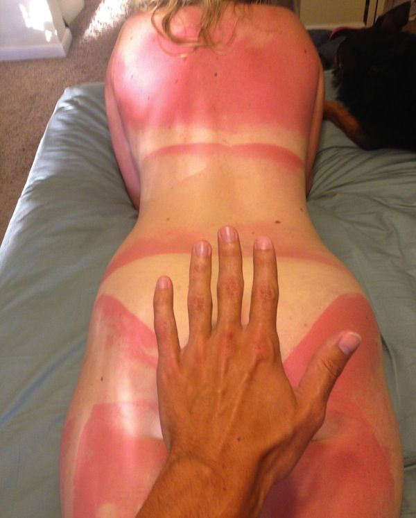 funny sunburns, worst sunburns, naked woman sunburn