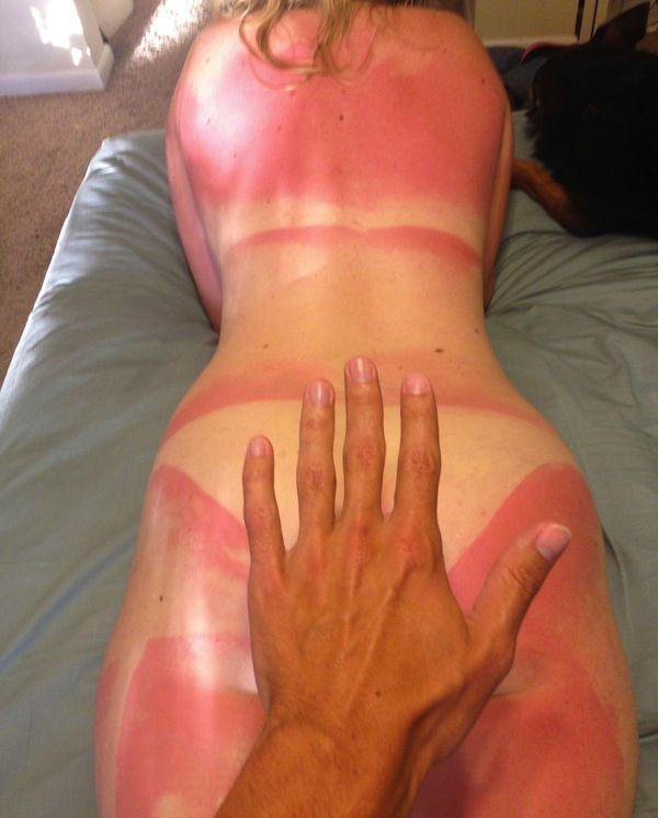 Bilderesultat for funny sunburn