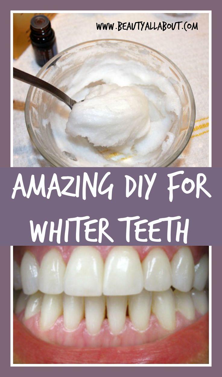 354 best diy teeth withener images on pinterest white teeth diy