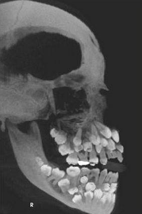 Too many teeth! Look at this x-ray. #dentistry