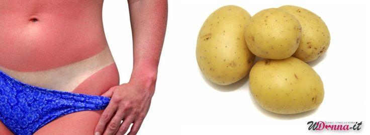 Scottature da sole: Rimedi naturali con patata, latte e tè! - http://www.wdonna.it/scottature-rimedi-naturali/58606?utm_source=PN&utm_medium=Gossip&utm_campaign=58606
