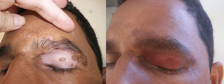 O vitiligo é uma doença autoimune que promove a destruição pelo próprio organismo dos melanócitos, células responsáveis pela produção do pigmento melanina.