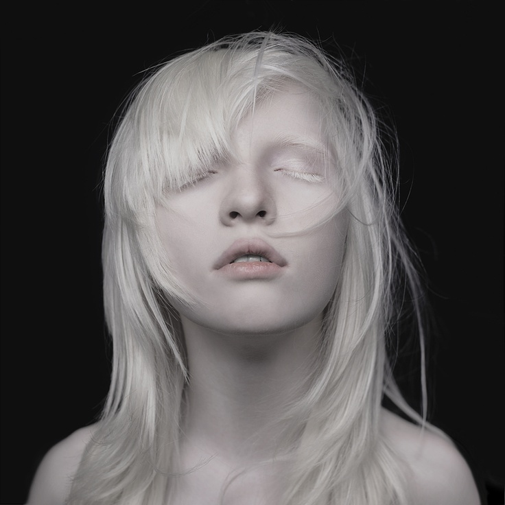 #albino #albinism #nastya #kumarova