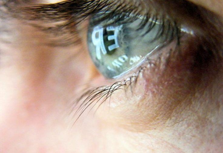 10 betegség, ami kiolvasható a szemedből!