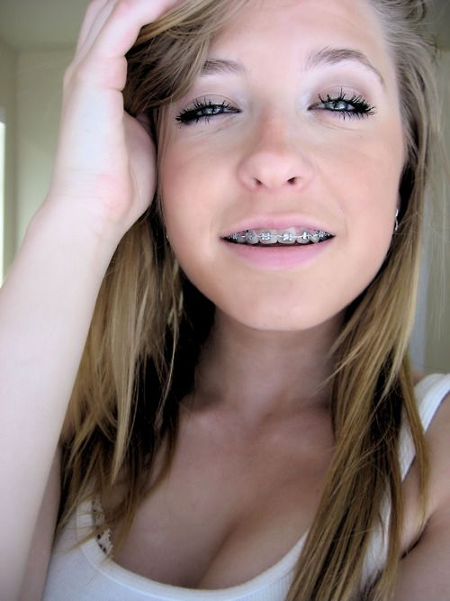 Facial braces blonde teen