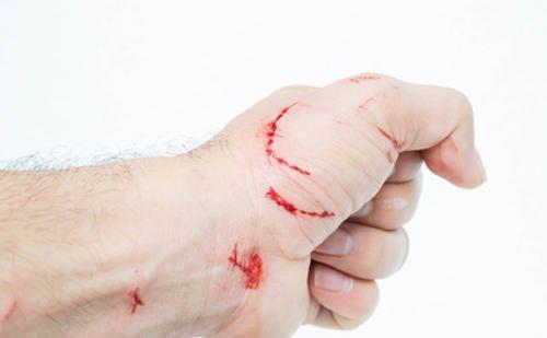 ¿Quién no se ha hecho un corte o herida a lo largo de su vida? En fitoterapia podemos servirnos de las plantas medicinales para curar heridas.