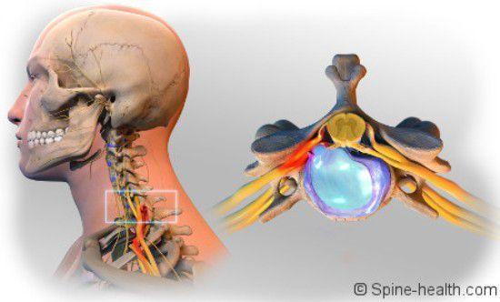 #Herniated Disc including spinal stenosis, sciatica.