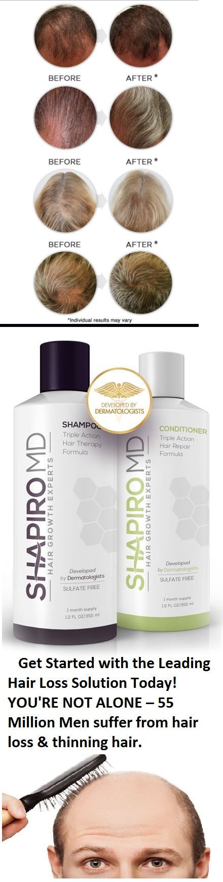 Shapiro MD's hair loss solution is a patented formula that contains the 3 most potent DHT blockers ever discovered. DHT is widely believed to be the root cause of hair loss. If DHT levels are lowered, hair loss will stop.