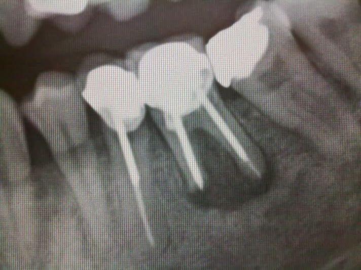 infeccion-endodoncia
